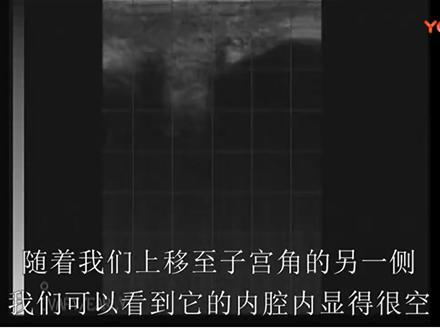 title='牛生殖系统超声波检查在线培训课程 - 9.非怀孕母牛超声波剪辑'